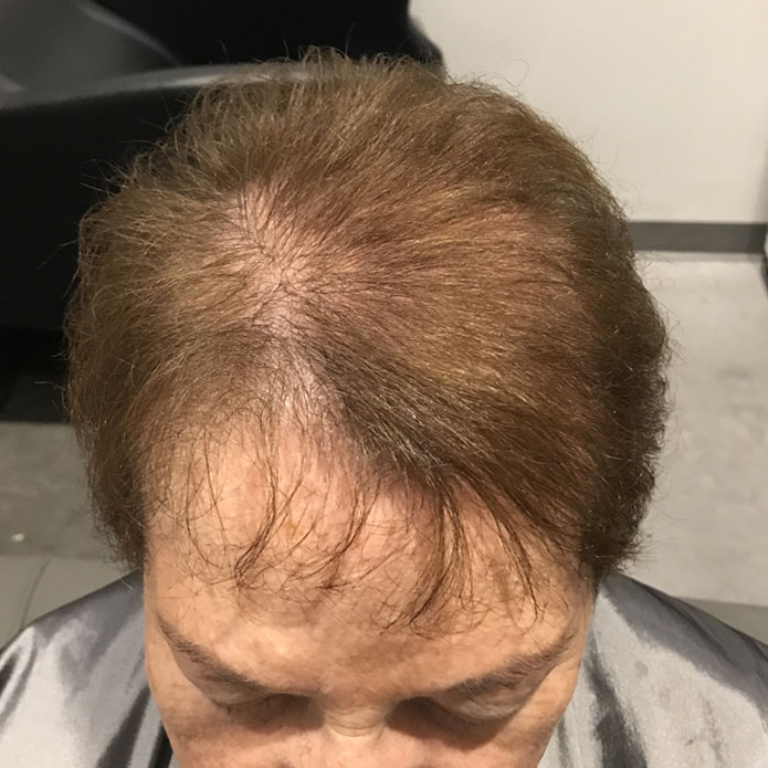 kms-hair-replacement-patient-3-before