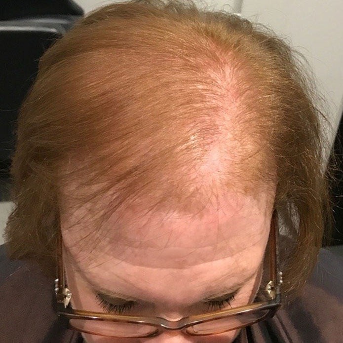kms-hair-systems-before