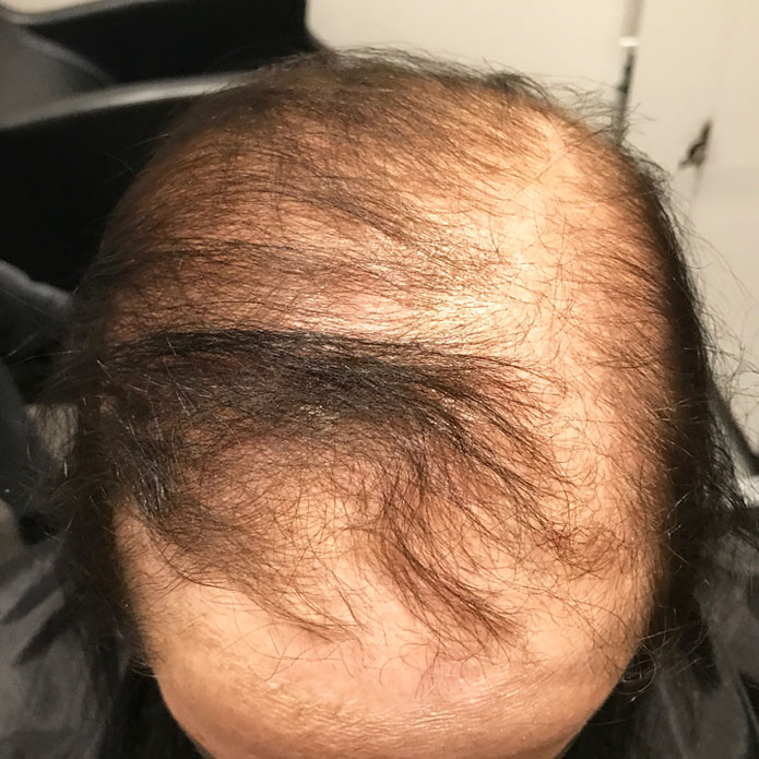 kms-hair-replacement-patient-5-before