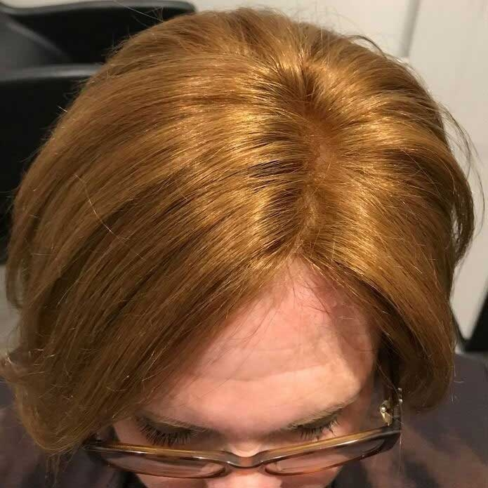 kms-hair-systems-after.2jpg