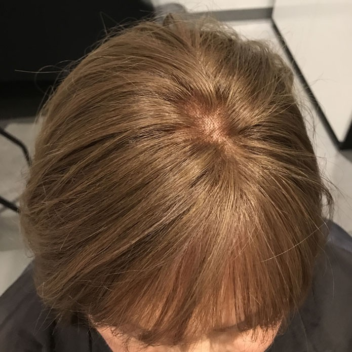 kms-hair-replacement-patient-2-after