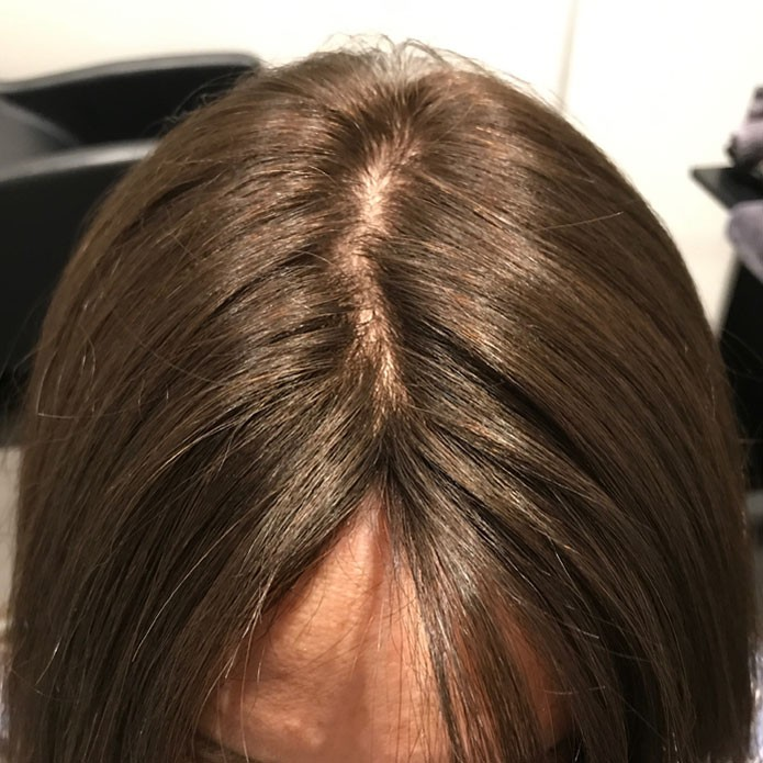 kms-hair-replacement-patient-5-after